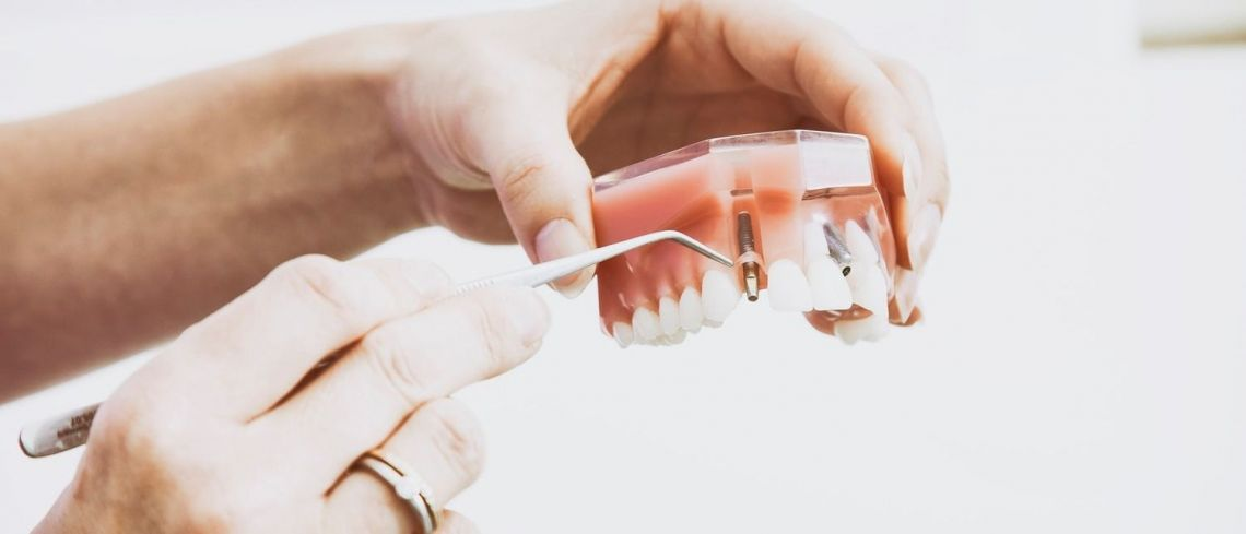 Dental implants can change your life –but which ones should you choose?