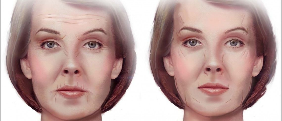 Is the way you sleep making your face wrinkly? Read how to avoid it — and the best cosmetic cures
