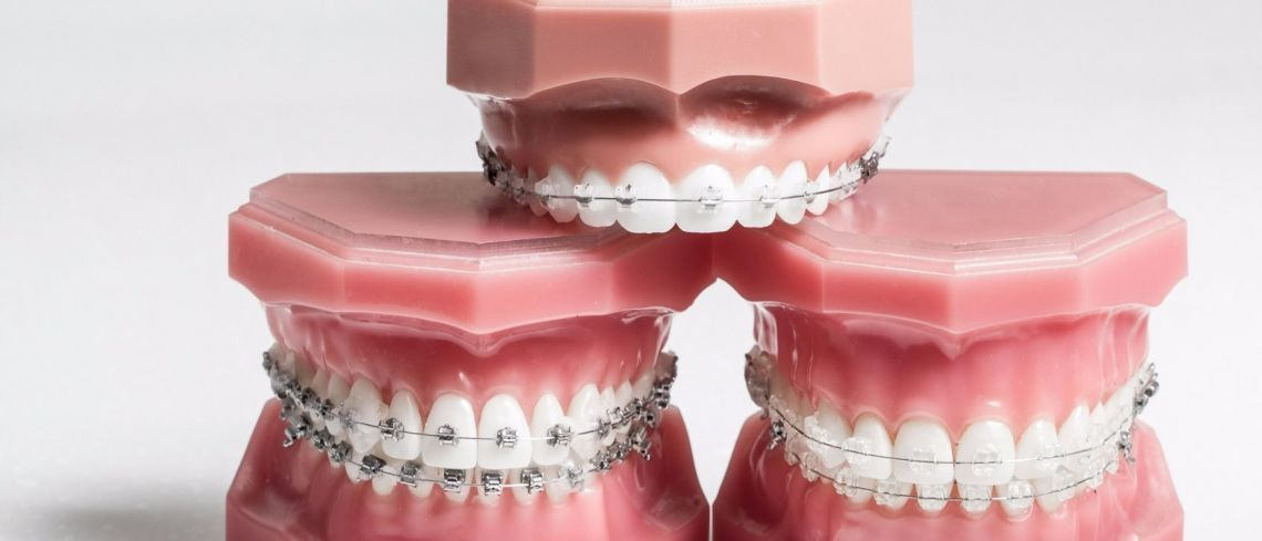 Comparethetreatment's Guide to Adult Orthodontics