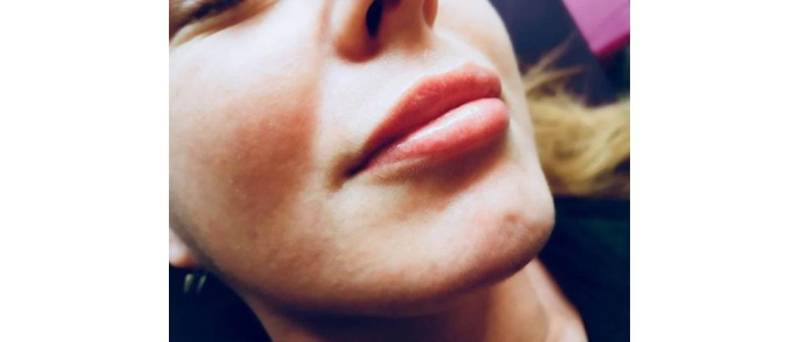 Lip Fillers 101: The Guide for Dummies