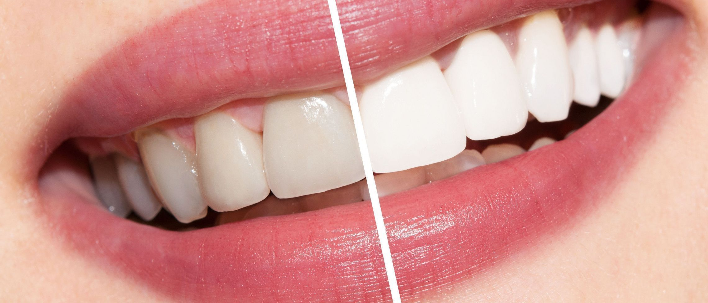 What are my best teeth whitening options?