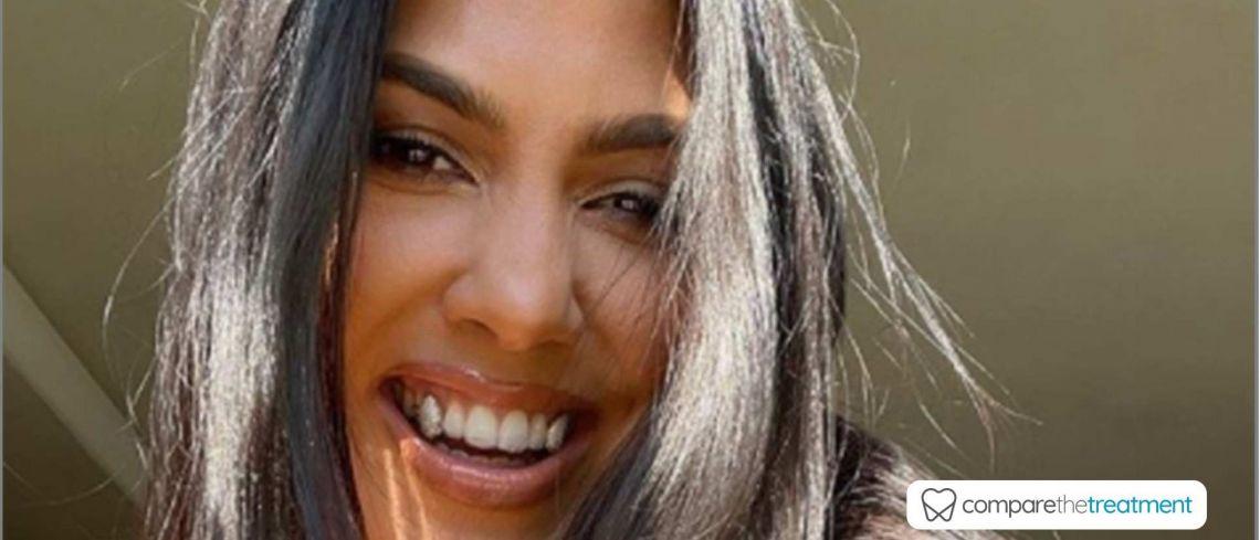 Kourtney Kardashian shows off diamond veneers in latest celeb trend