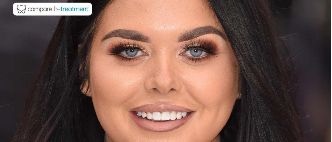 Scarlett Moffatt reveals before and after photos following recent dental treatment