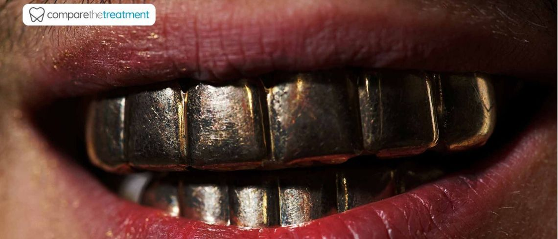 What are grills and are they bad for your teeth?