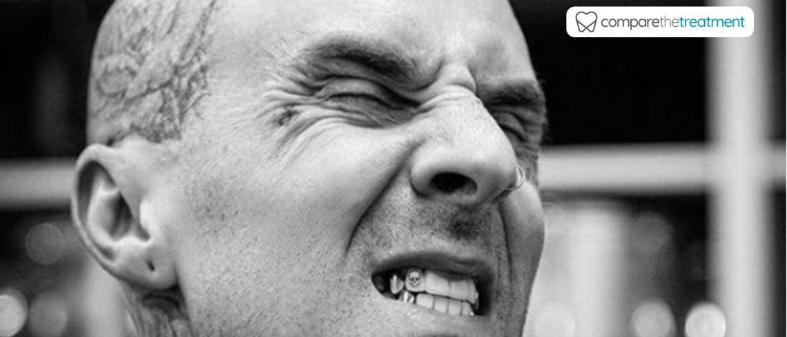 Travis Barker dresses up smile with diamond skull