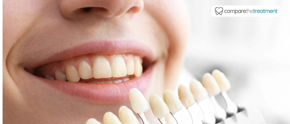 Illegal at-home teeth whitening products can lead to 'extensive damage'