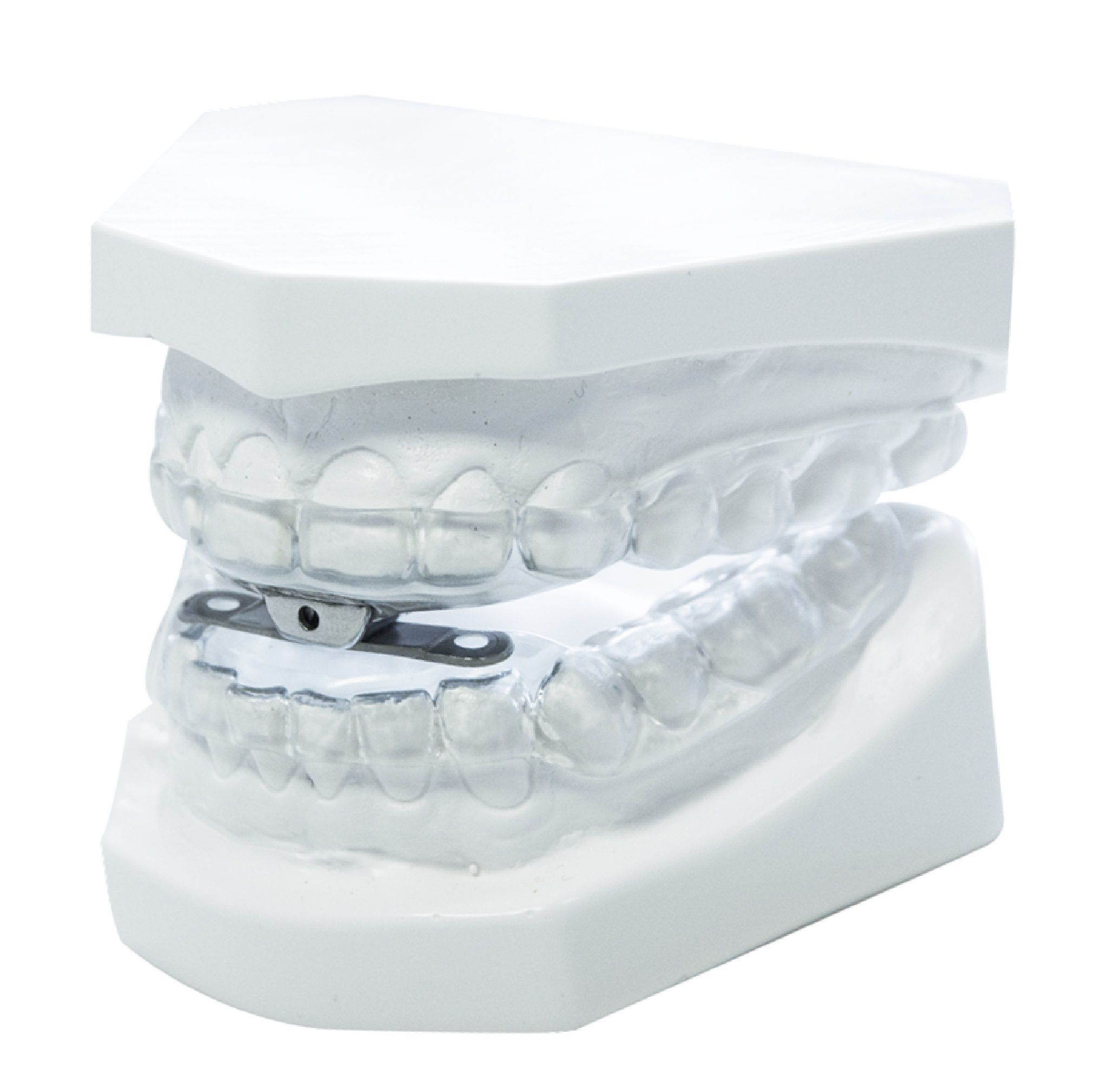 Dental mouthpiece