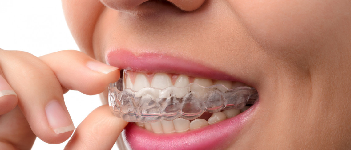 Removable Braces (Clear Aligners)