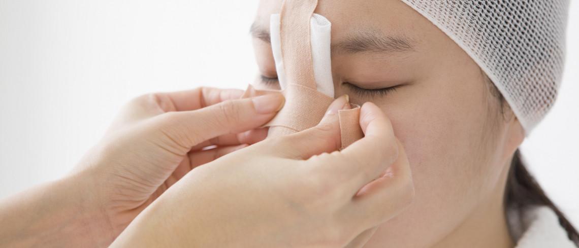 Nose Reshaping (Rhinoplasty)