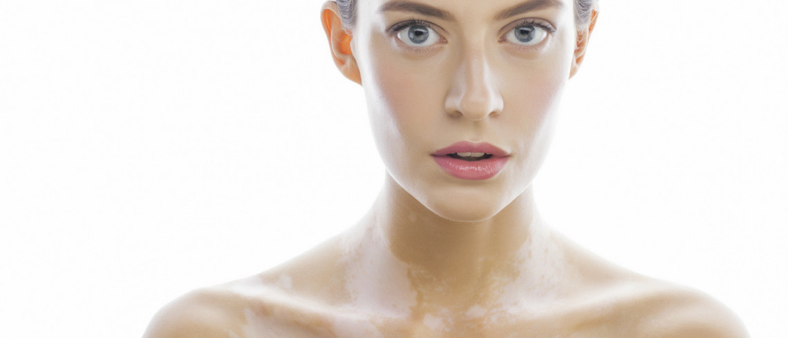 Dermamelan Depigmentation Treatment