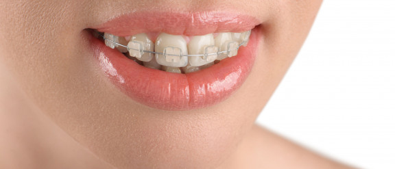 Ceramic Fixed Braces
