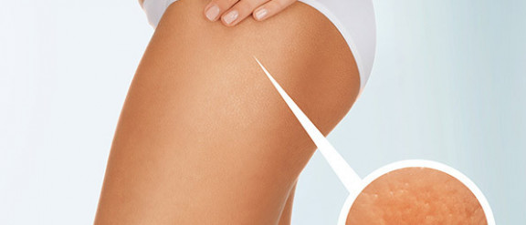 Mesotherapy for Cellulite and Unwanted Fat
