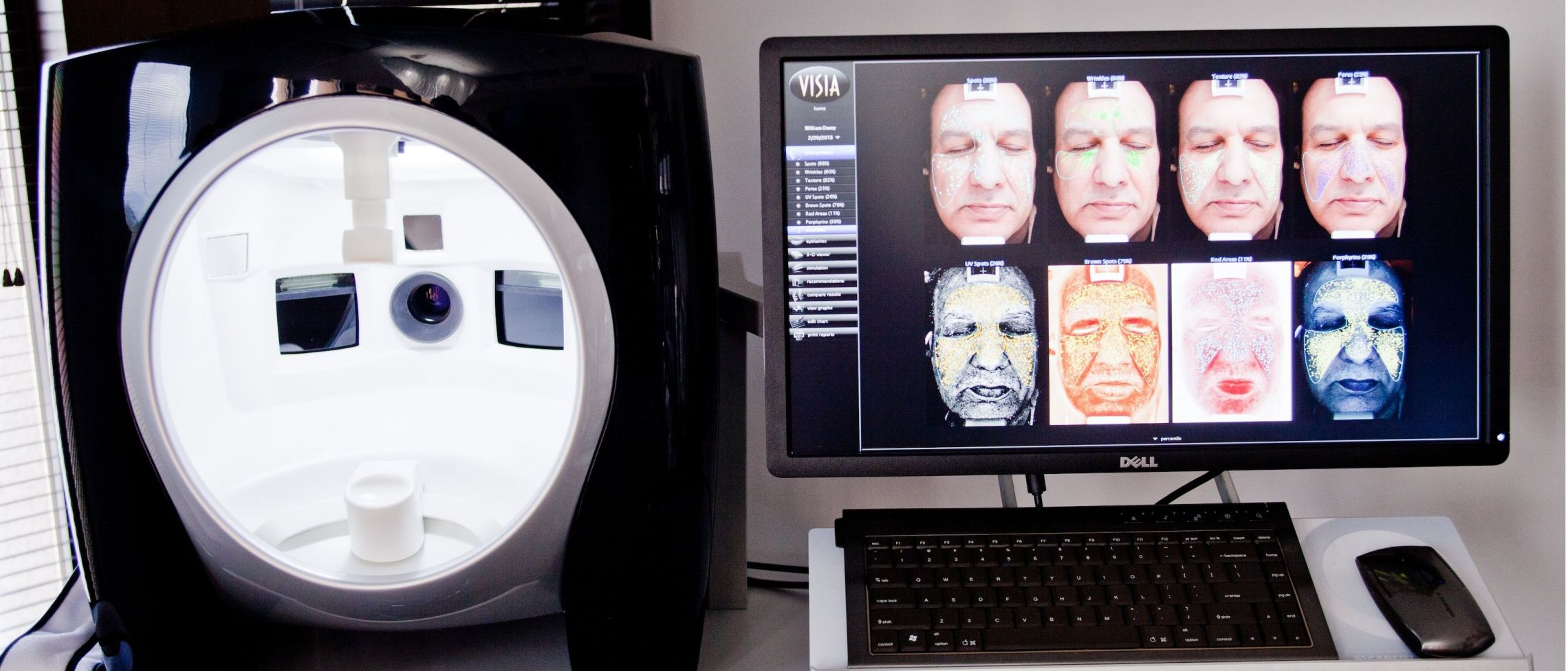 VISIA™ Skin Analysis